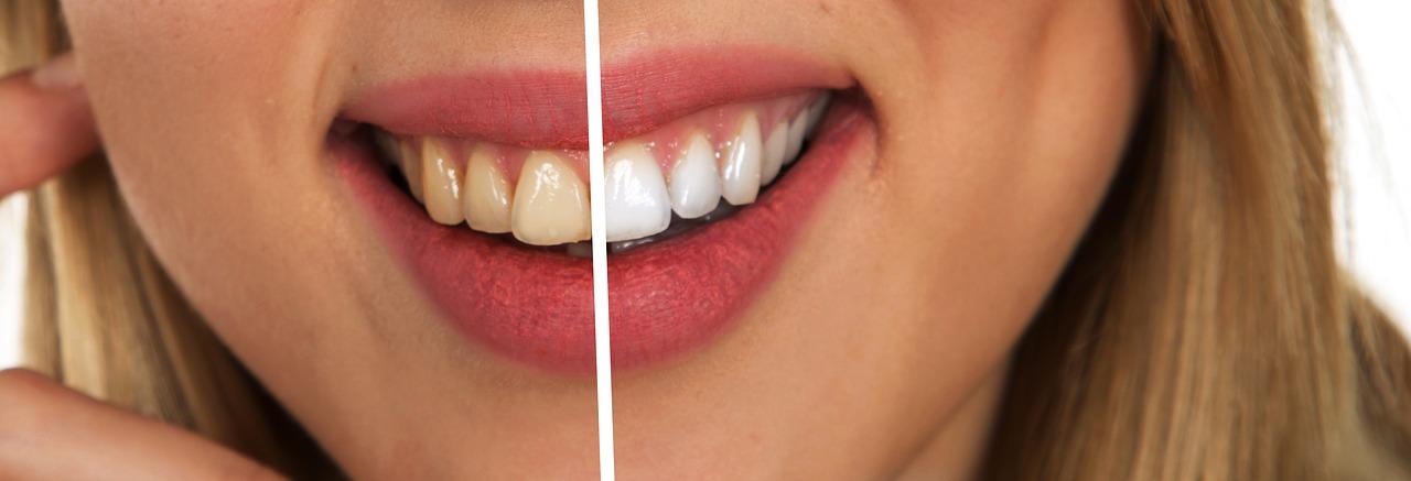 stoppen-roken-witte-tanden