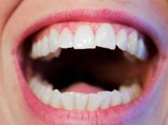 tips-tegen-tandplak