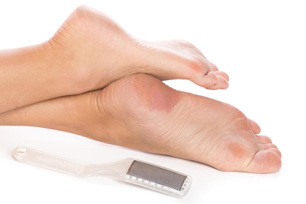 eelt voeten verwijderen